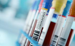 COVID-19 Coronavirus test tubes.