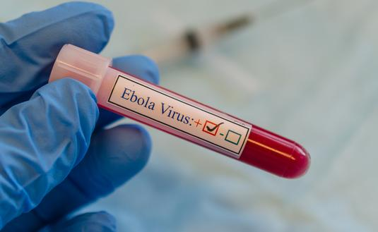 ebola, viirus, outbreak